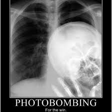 chestxrayphotobomb